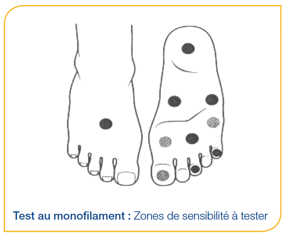 Test au Monofilament